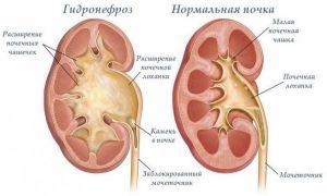 Ангиомиолипома почки, опасна ли она для жизни: симптомы и лечение