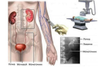 Инциденталома надпочечника: симптомы, диагностика и лечение