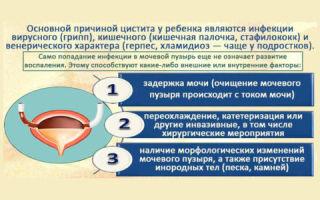 Эпителий в моче у ребенка: плоский, переходный, почечный, его норма