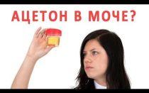 Ацетон в моче у взрослых: норма, причины повышения, симптомы, определение, как снизить