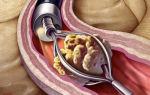 Каликоэктазия почек: признаки, диагностика, лечение и профилактика