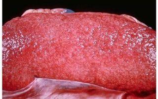 Нефросклероз почек: что это такое, причины и исход заболевания