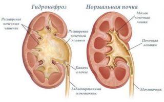 Обструкция мочевыводящих путей: диагностика, симптомы и лечение
