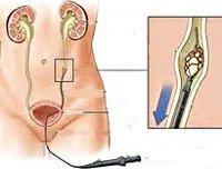 Камень в мочеточнике: причины, симптомы, диагностика и лечение