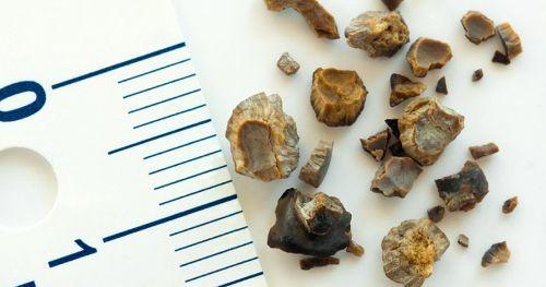 Камни в почках: причины образования, симптомы и лечение
