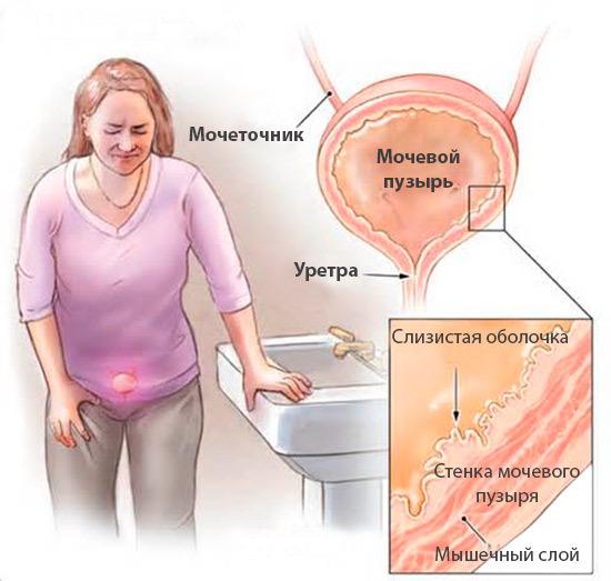 Интерстициальный цистит: причины, симптомы, диагностика, лечение заболевания