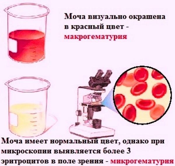 Макрогематурия и микрогематурия - причины появления у взрослых и детей, нормы, подготовка к анализу