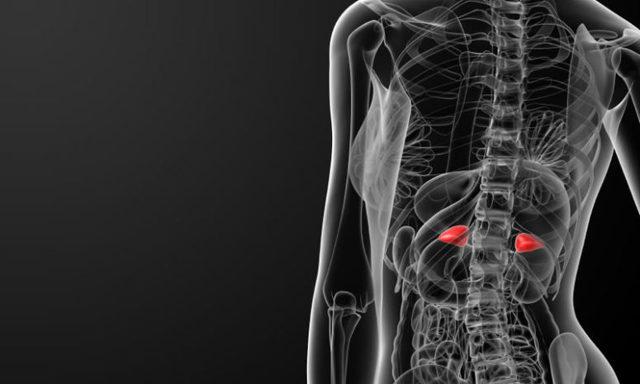 Опухоли надпочечников: симптомы, диагностика и лечение