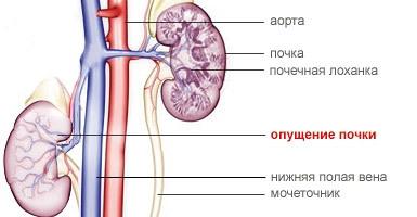 Нефропексия: показания и противопоказания к проведению операции