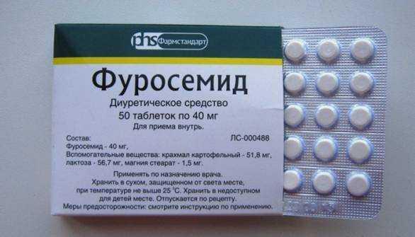 Микронефролитиаза в почках: причины, симптомы, диагностика, лечение, профилактика