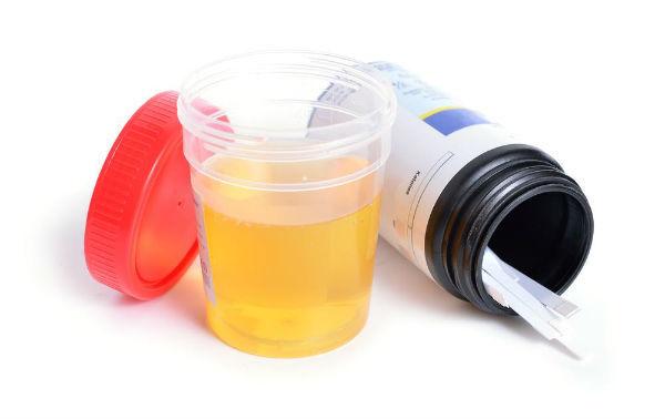 Сахар в моче (глюкозурия) у взрослых и детей: норма, причины повышения, осложнения, методы лечения