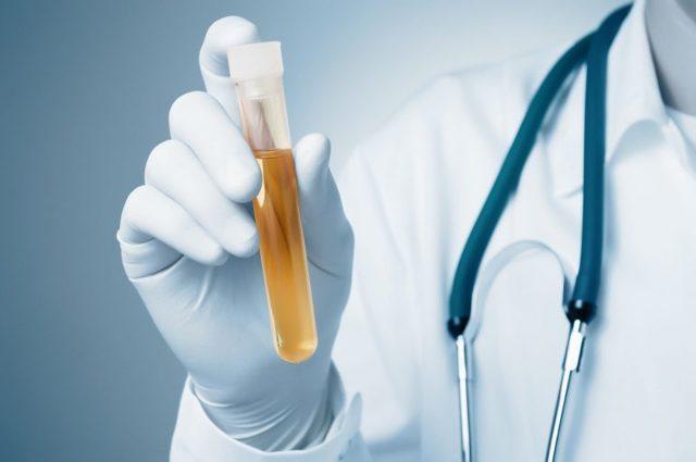 Кристаллы соли в моче: причины, симптомы, диагностирование, лечение