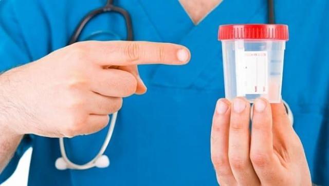 Повышенные ураты в моче у взрослых и детей: норма, причины, симптомы, лечение, диета