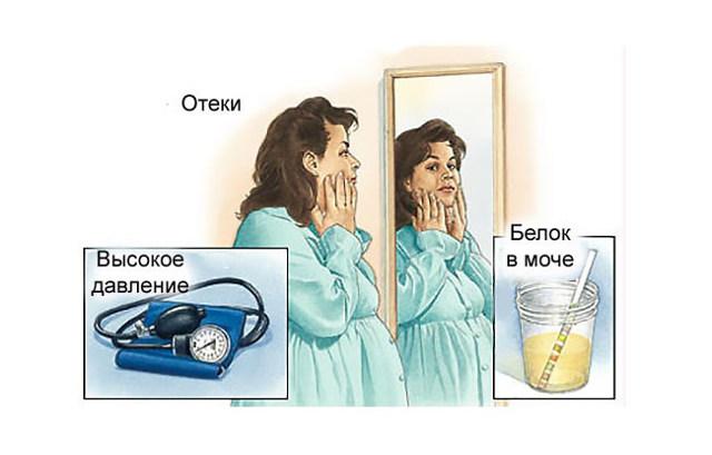 Нефропатия у беременных: степени, формы, симптомы и лечение