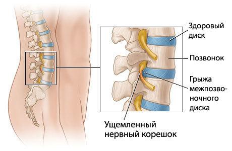 Ноющая боль внизу живота у мужчин - тяжесть, дискомфорт, резь