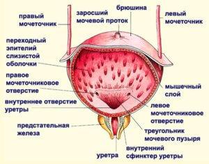 Застудила мочевой пузырь: симптомы, лечение в домашних условиях женщин, мужчин и детей