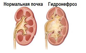 Двусторонний гидронефроз почек: причины, симптомы и лечение