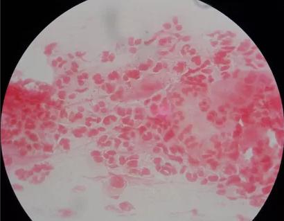 Инфекция мочевыводящих путей: симптомы, лечение и последствия