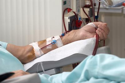Применение фистулы для гемодиализа: уход и полезные советы
