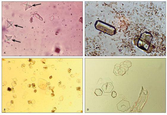 Оксалатные камни в почках: причины, симптомы, растворение, диета