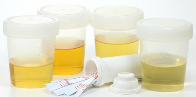 Запах и цвет мочи при беременности на ранних сроках: норма, причины изменения