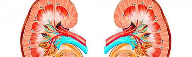 Микролиты в левой и правой почках: причины, симптомы и лечение