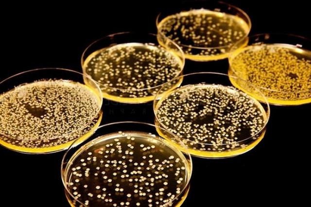 Стафилококк в моче и в мазке у женщин – лечение при беременности