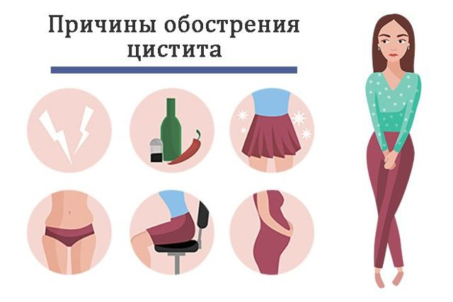 Острый цистит: причины, симптомы у женщин, лечение обострения