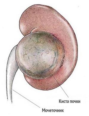 Киста почки: причины, симптомы, лечение и исход заболевания