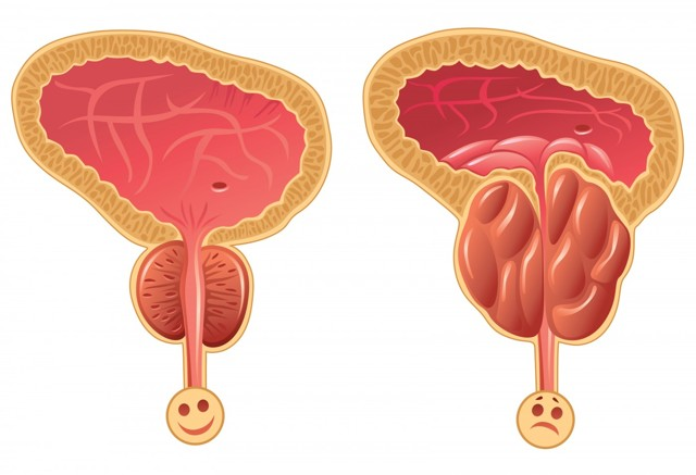 Проблематика лечения мочеполовой системы у мужчин.