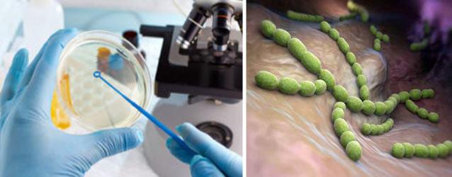 У женщин могут быть ложноотрицательные результаты анализа на инфекции мочевыводящих путей