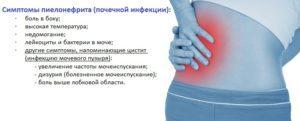 Пиелонефрит у мужчин: классификация, признаки и лечение