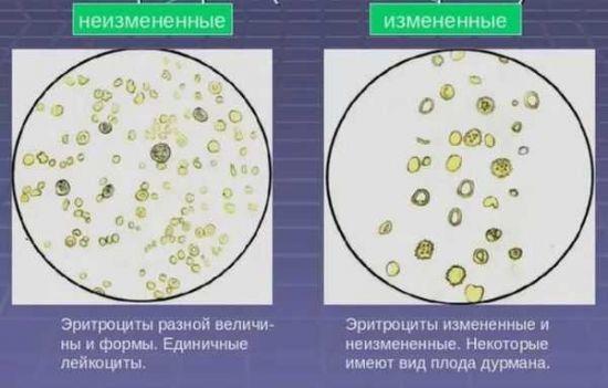 Повышенные эритроциты в моче у женщин, мужчин и детей - причины, норма, лечение
