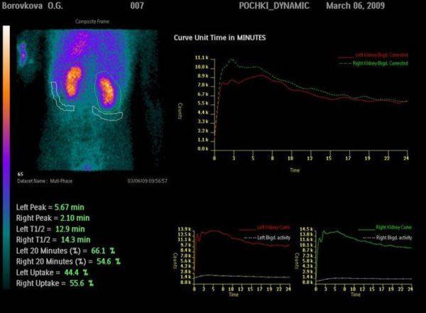 Радиологическое обследование почек у детей и взрослых: как проходит, подготовка, противопоказания