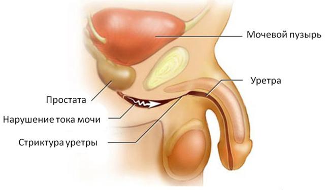 Инстилляция уретры у мужчин  и женщин