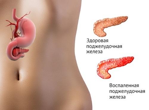 Повышенная амилаза мочи и крови у мужчин женщин и детей: норма, причины, диагностика