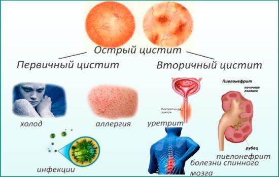 Какой врач лечит цистит у женщин: гинеколог, уролог или нефролог