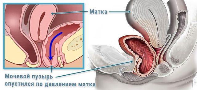 Опущение мочевого пузыря у женщин : что это такое, симптомы, лечение