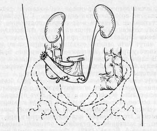 Техника проведения операции Брикера