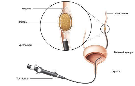 Как вывести камни в мочевом пузыре у мужчин и женщин: причины, симптомы, лечение