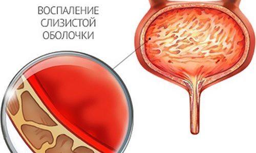 Цистит: острый, хронический, геморрагический и другой по МКБ-10