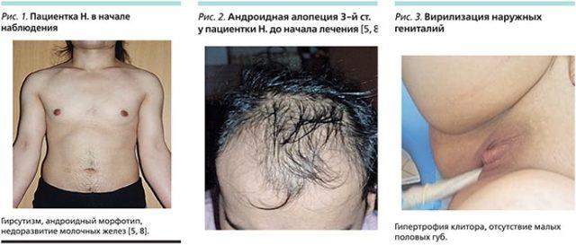 Гиперплазия коры надпочечников: виды, симптомы, лечение