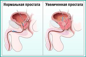 Фурадонин: инструкция, отзывы врачей и пациентов о препарате для мужчин и детей
