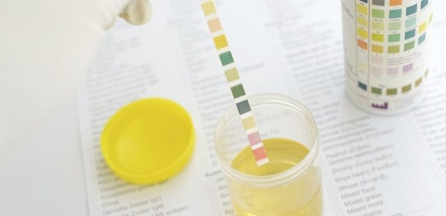 Причины появления запаха ацетона в моче у женщин (беременных), мужчин и детей