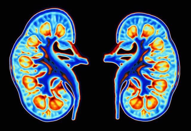 Нефротический и нефритический синдром: дифференциальная диагностика