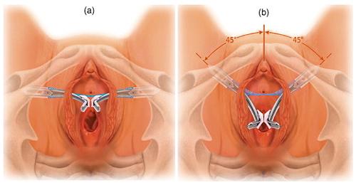 Слинговые операции при недержании мочи у женщин: показания, проведение, отзывы