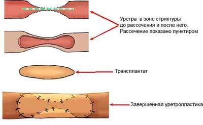 Стриктура уретры у мужчин и женщин: причины, лечение оперативными и народными методами