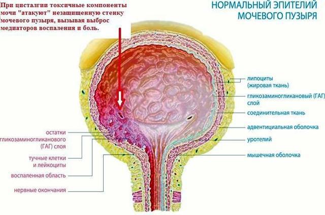 Цисталгия мочевого пузыря у женщин: симптомы, лечение традиционными и народными методами