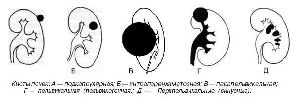Болит почка с правой стороны: симптомы, диагностика, лечение