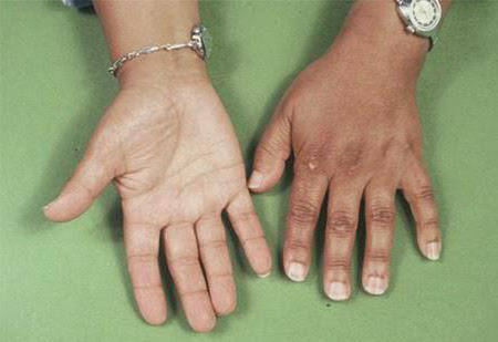 Гипофункция надпочечников: причины, симптомы и лечение болезни